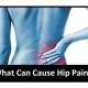 Causes of Hip Pain Gold coast Treatment