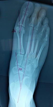 Misaligned Hips-x-rays