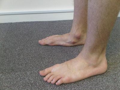 Misaligned feet and knees Treated on the Gold Coast