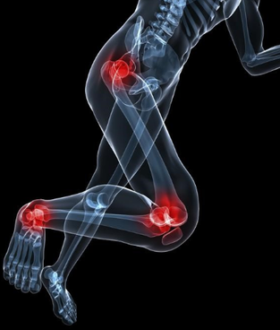 Foot, Knee and Hip Pain Treatment Gold Coast