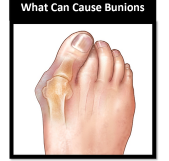 Podiatrist for bunions on the Gold Coast
