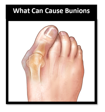 Podiatrist bunions on the Gold Coast