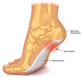 Heel Pain Treatment Gold Coast