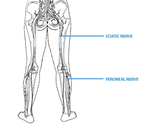 Sciatic Nerve Treatment Gold Coast